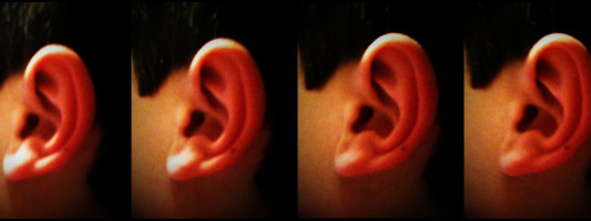 Sudden_hearing_loss